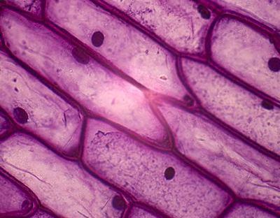 Клітина епідермісу