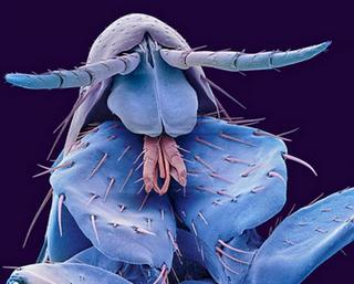 мікроб