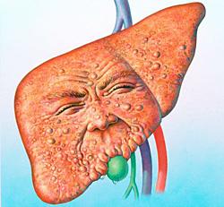 Ожиріння печінки