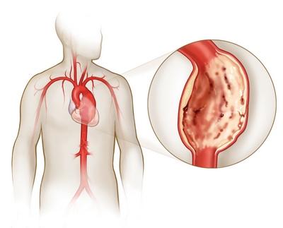 аорты