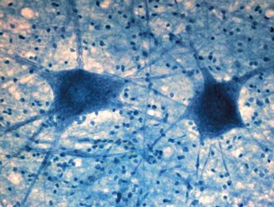 Нервная клетка под микроскопом